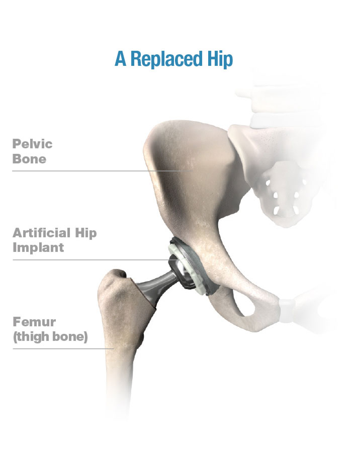 G1 0000 healthy replaced hip right