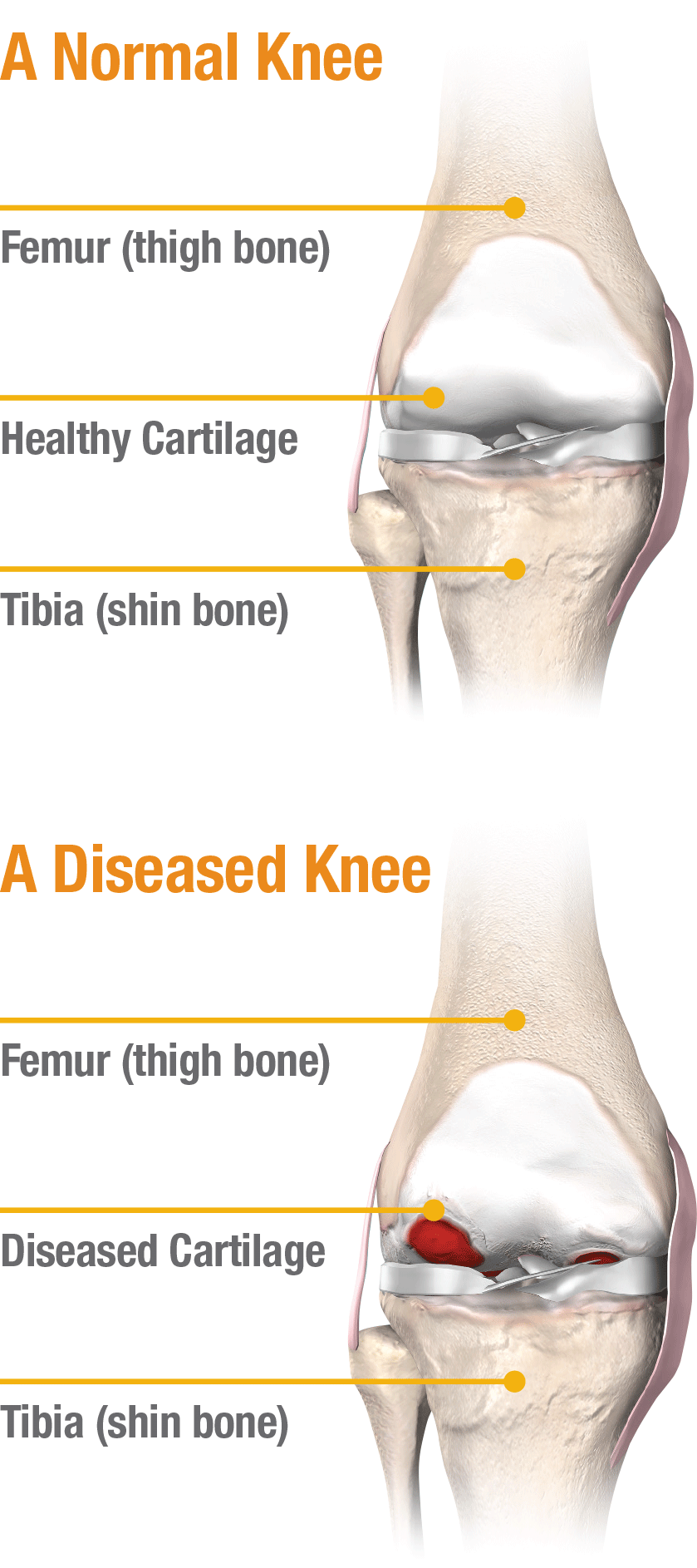 Knee norm diseased