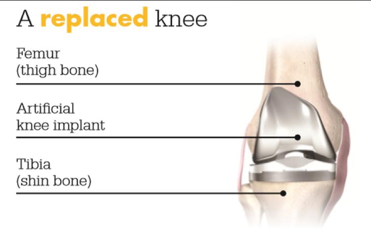 Knee 0002