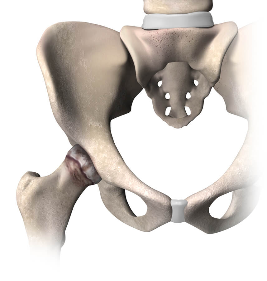 What is hip replacement sidefade